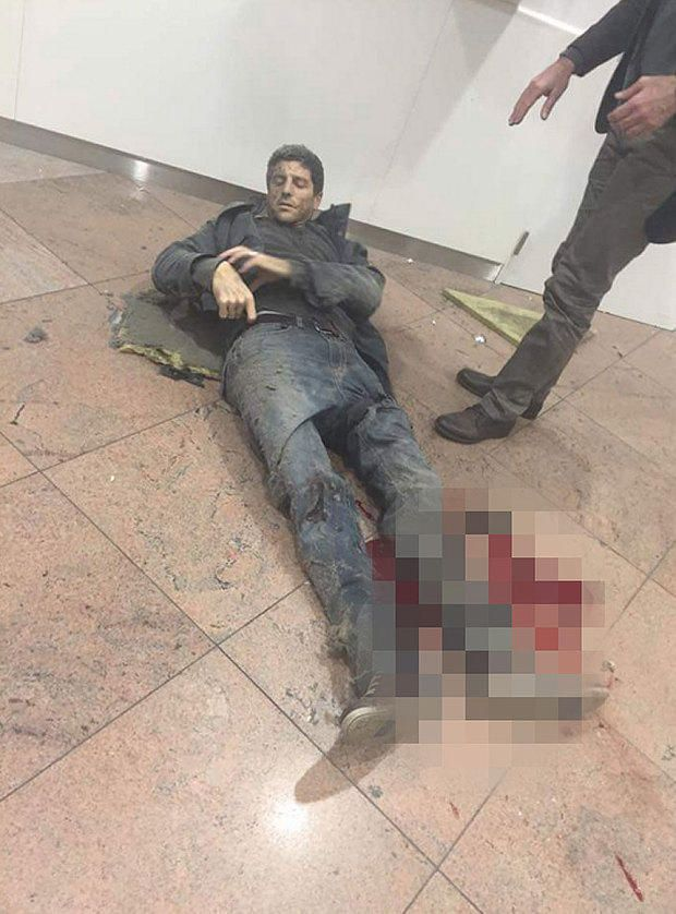 Brussels leg wound