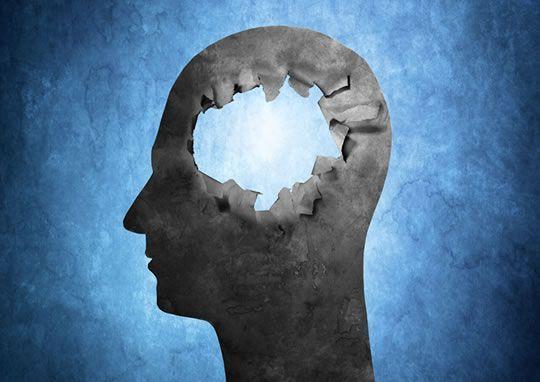 Αλτσχάιμερ: Πώς θα μπορούσε να επιβραδυνθεί