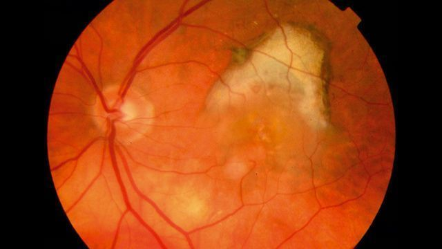 macular degeneration essay Read this essay on macular degeneration come browse our large digital warehouse of free sample essays get the knowledge you need in order to pass your classes and more.